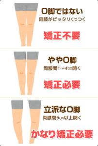上尾市すぎやま整骨院O脚矯正X脚矯正がに股